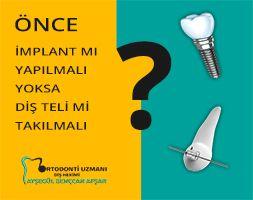 Önce implant mı yapılmalı yoksa diş teli mi?