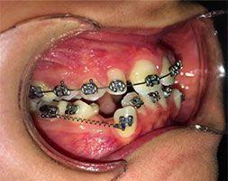 Ortodontide Segmental Kuvvet Uygulaması