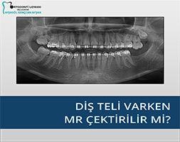 Diş teli varken MR çektirilir mi?
