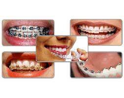Ortodontik Tedavilerde Hangi Braketler ve Teller Kullanılmaktadır?